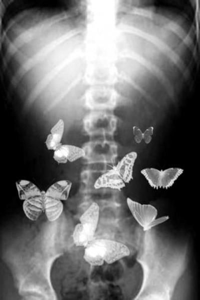 Butterflies-e1390726647554